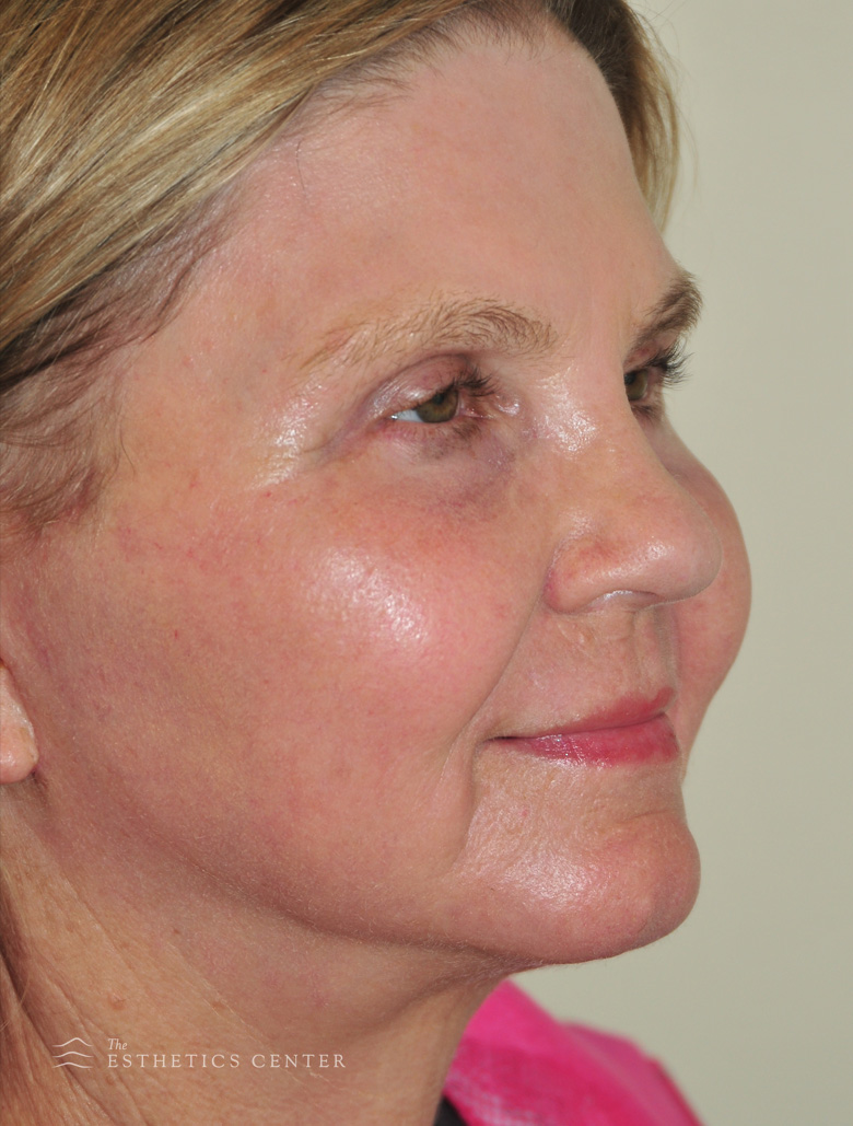 Facelift neck eyelid LSR - after.jpg