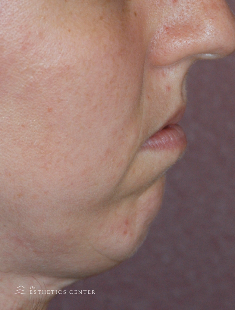 Chin Aug - before.jpg