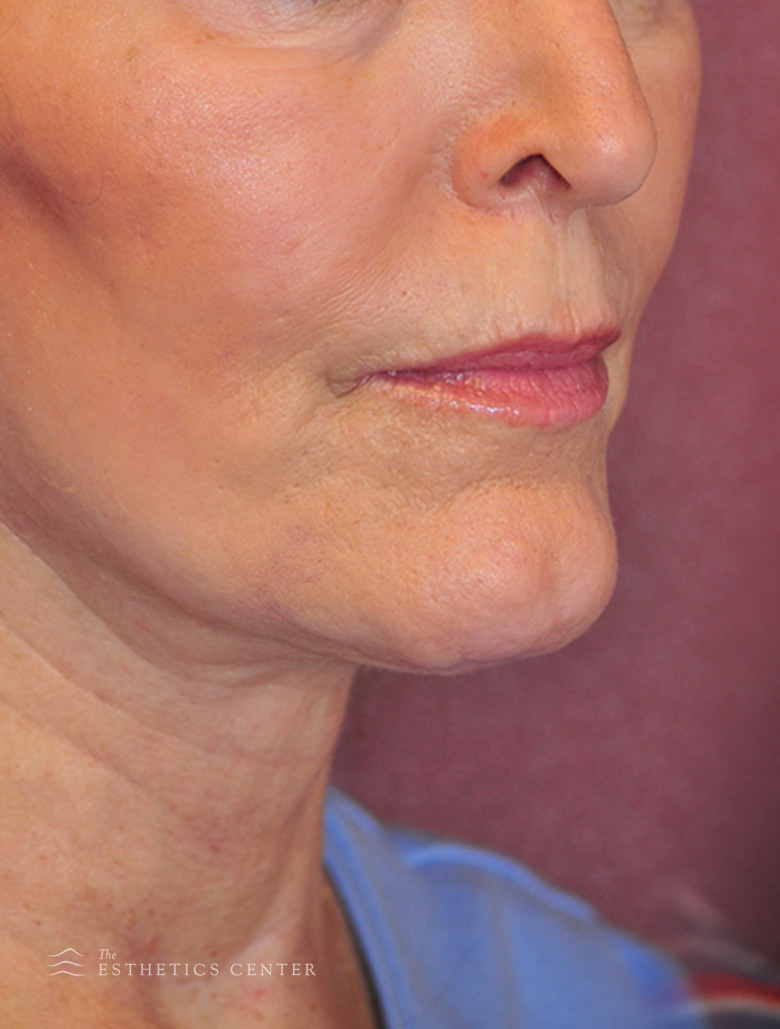 Facelift - after.jpg