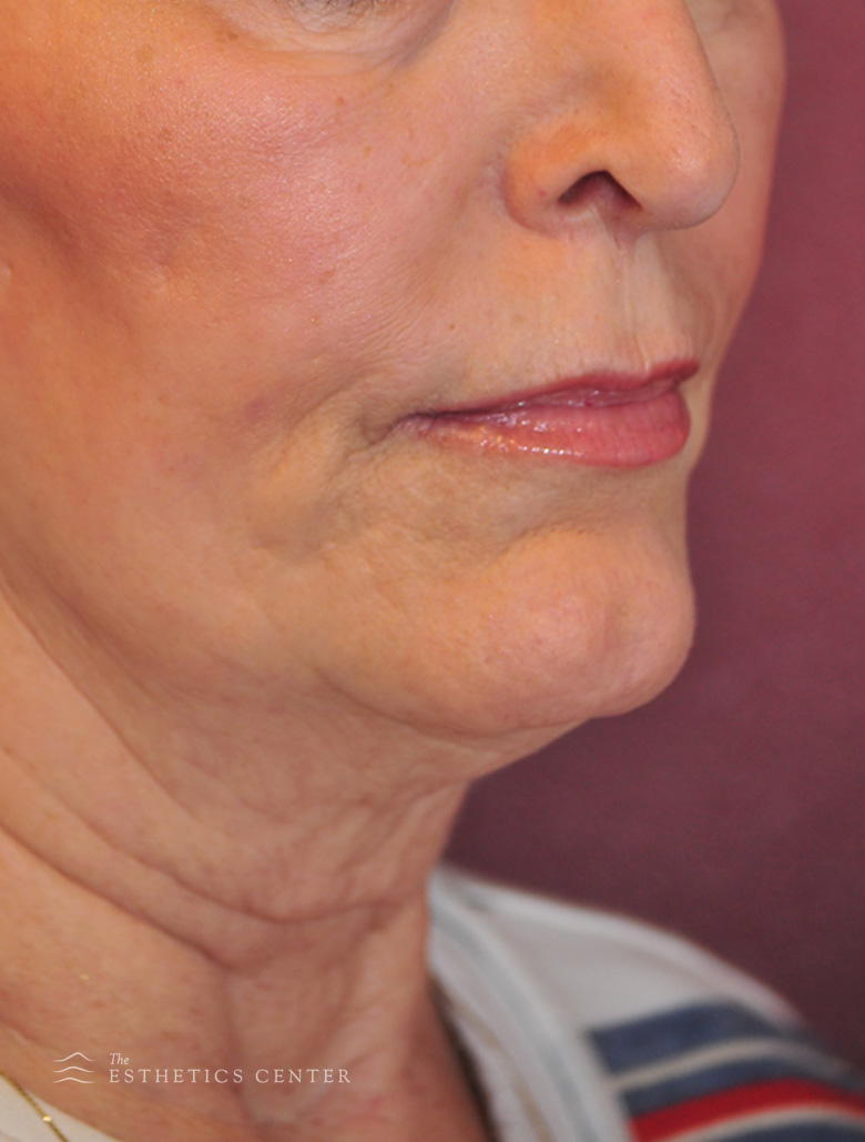 Facelift - before.jpg