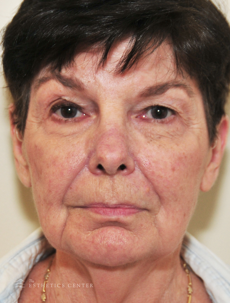 Facelift before.jpg