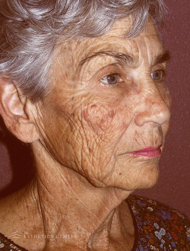 zFacelift, Fat transfer, LSR - before.jpg