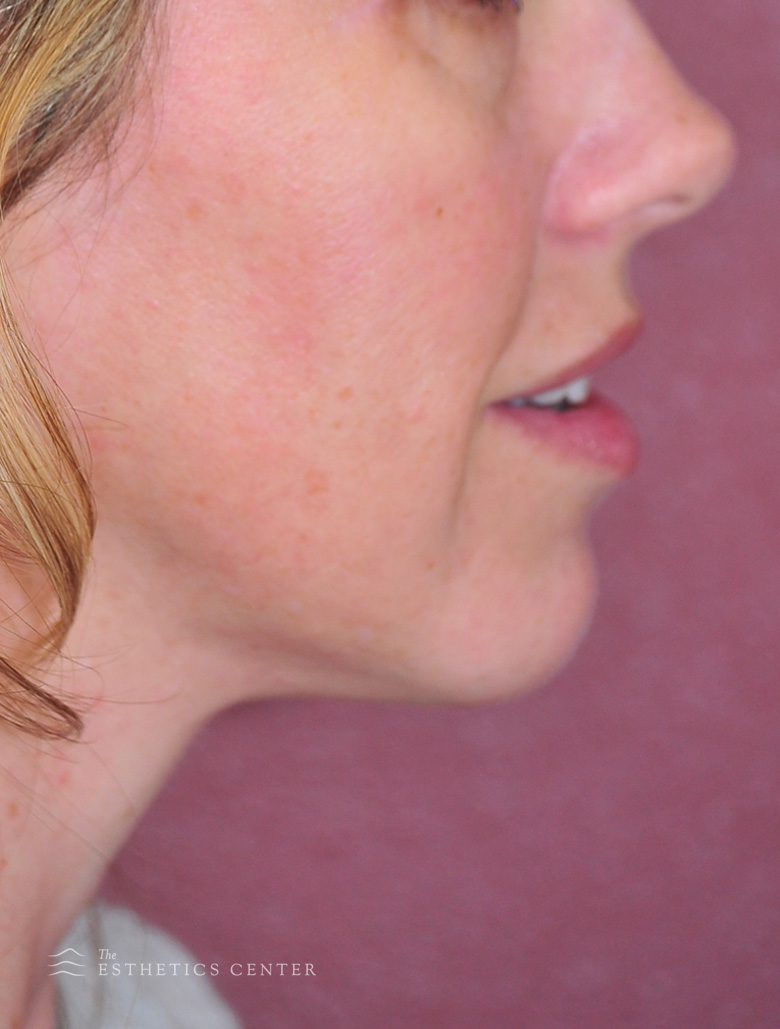 Chin Aug 2 - after.jpg