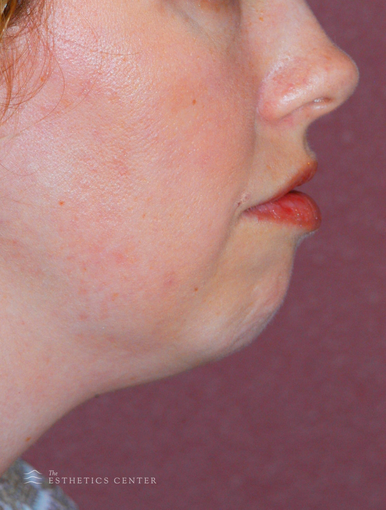 Chin Aug 2 - before.jpg