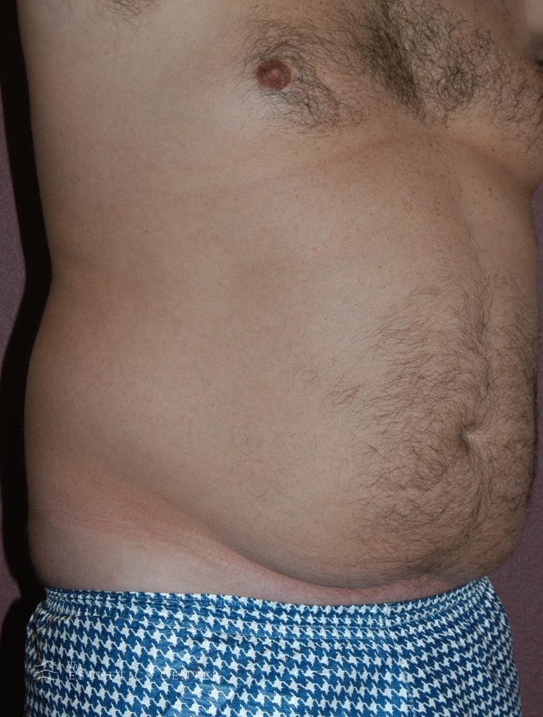 Male Lipo - before.jpg