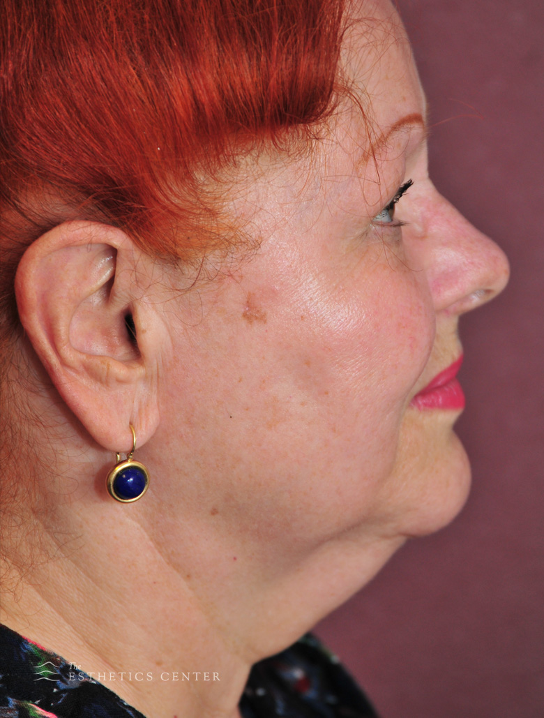 Necklift 1 - before.jpg