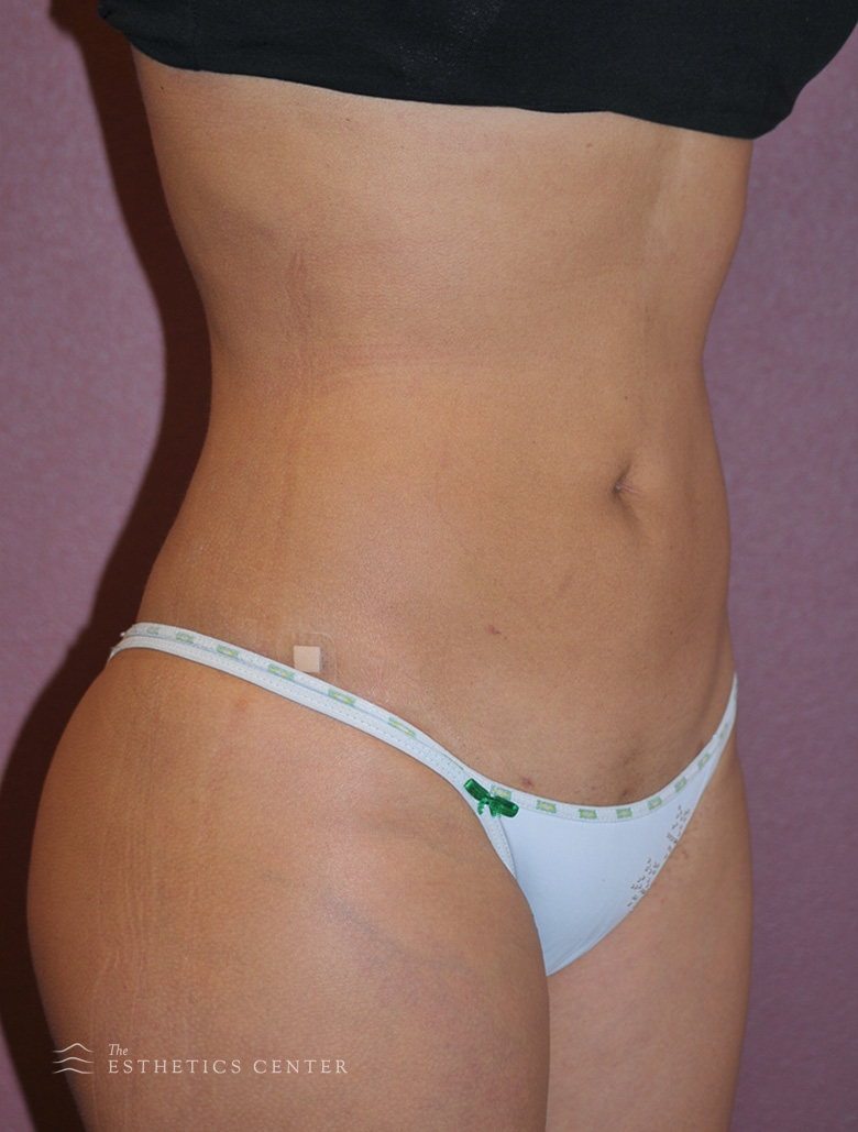 Tummy Lipo - after.jpg