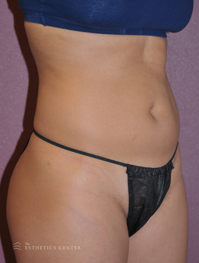 Tummy Lipo - before.jpg