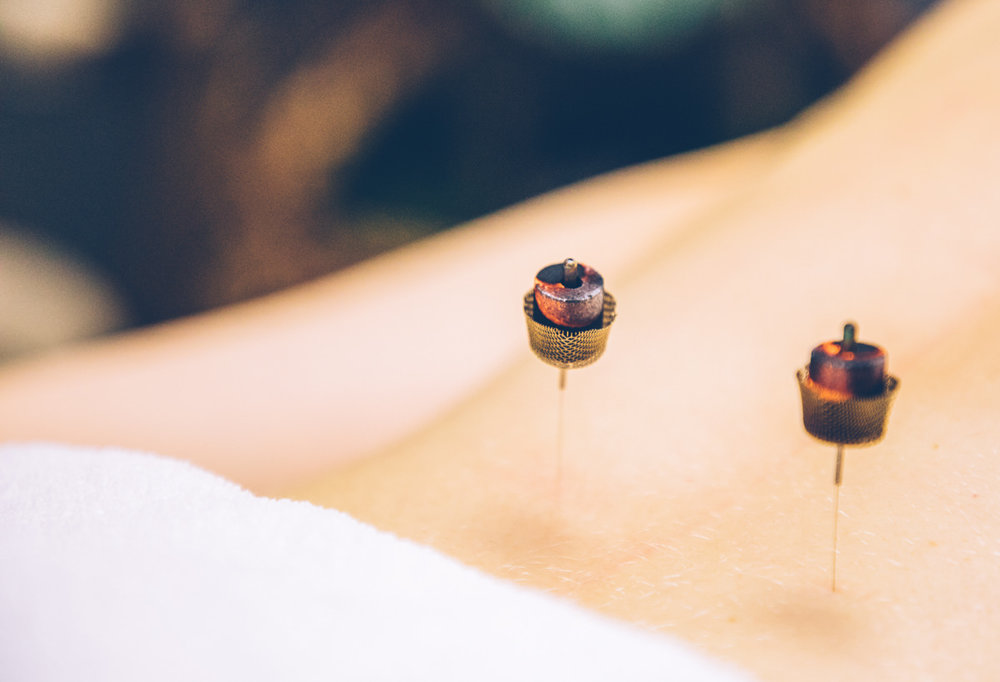 moxibustion-treatment.jpg