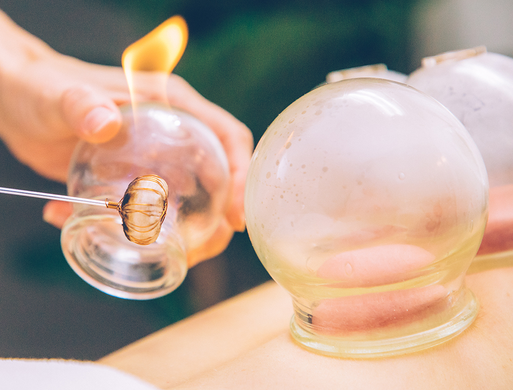 cupping-acupuncture.jpg