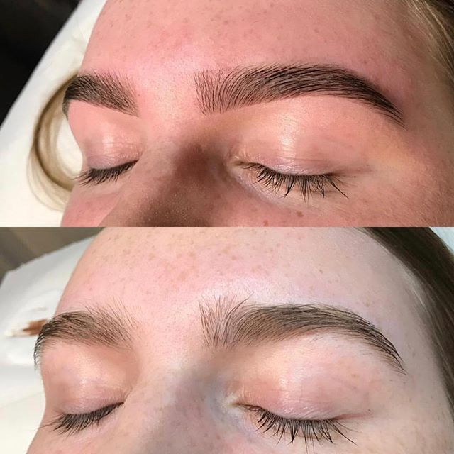 Before/after our 'signature brow lift' treatment 💯 #KENNYANKER