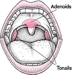Tonsils & Adenoids