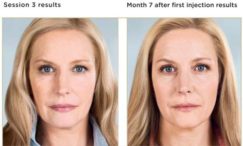 Kay Durairaj KD Skincare Beautybydrkay acne treatment and anti aging products botox pasadena fillers injectables sculptra plastic surgery sculptra pasadena
