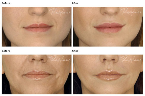 Kay Durairaj KD Skincare Beautybydrkay acne treatment and anti aging products botox pasadena fillers injectables sculptra plastic surgery