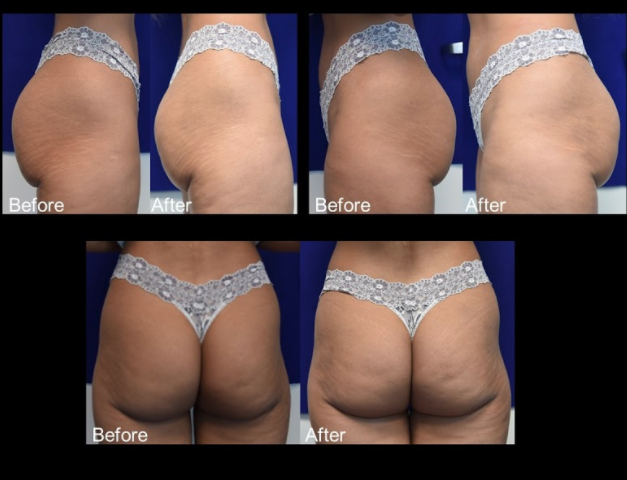 This 36-year-old woman presented with hollowness and volume deficiency in the buttocks. 2 months after 2 treatments totaling 24 vials of Sculptra, rehydrated with 288 mL of sterile water and 48 mL of 1% lidocaine, for a total volume of 168 mL in each buttock. She was given topical lidocaine pre-treatment. After treatment, the patient shows volume and contour improvement in the buttocks.