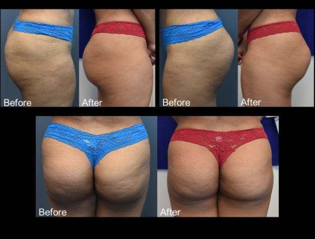 Female, Age 33 - This woman presented with hollowness and volume deficiency in the buttocks.  1 month after a single treatment of 2 vials of Sculptra.  This patient showed improvement in volume as well as the filling in of cellulite dimpling.