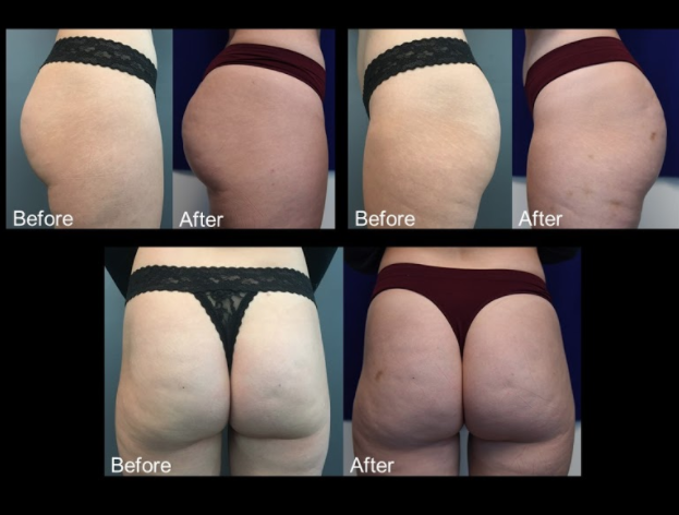 Female, Age 30 - This woman presented with hollowness and volume deficiency in the buttocks.  6 months after 2 treatments totaling 7 vials of Sculptra.  After treatment, the patient shows volume and contour improvement in the buttocks.