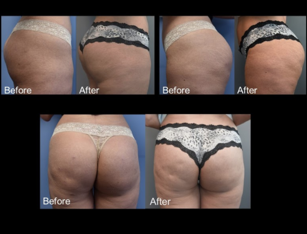 Female, Age 44 - This 44-year-old woman presented with hollowness and volume deficiency in the buttocks.  1 month after a single treatment of 4 vials of Sculptra.  After treatment, the patient shows volume and contour improvement in the buttocks.