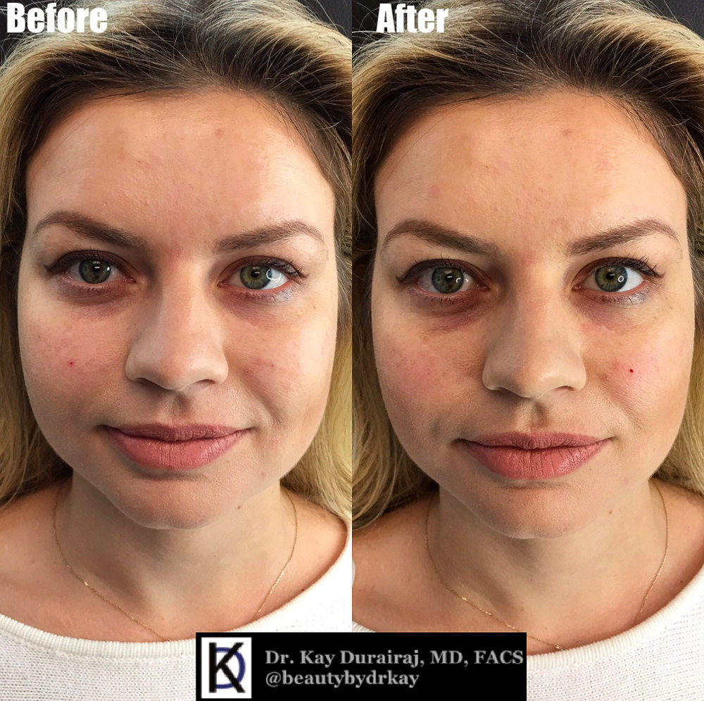 Female, Age 26 - This patient received 1 syringe of Belotero Balance under the eyes to reduce hollowness and darkness under the eyes.