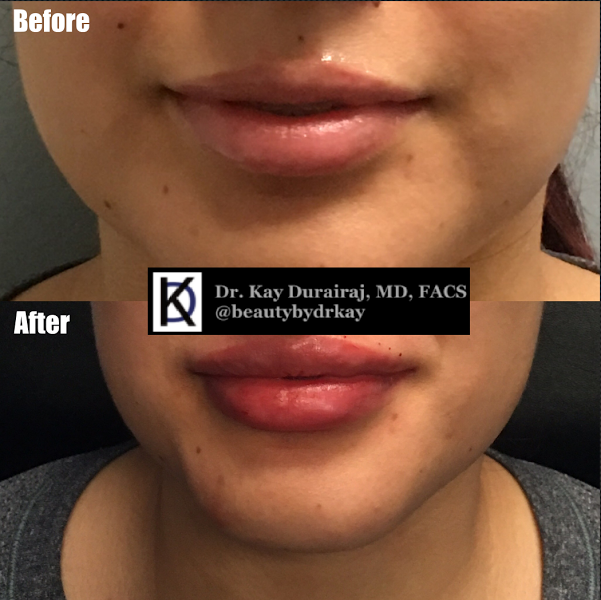 Female, Age 22 - This patient received 1 syringe of Resylane Lyft to give a more pronounced upper lip and pillowy lip cleavage.