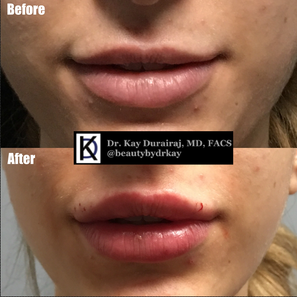 Female, Age 25 - This patient received 1 syringe of Restylane Lyft to accentuate the outer border of the upper lips as well as correct asymmetry on the bottom lip.