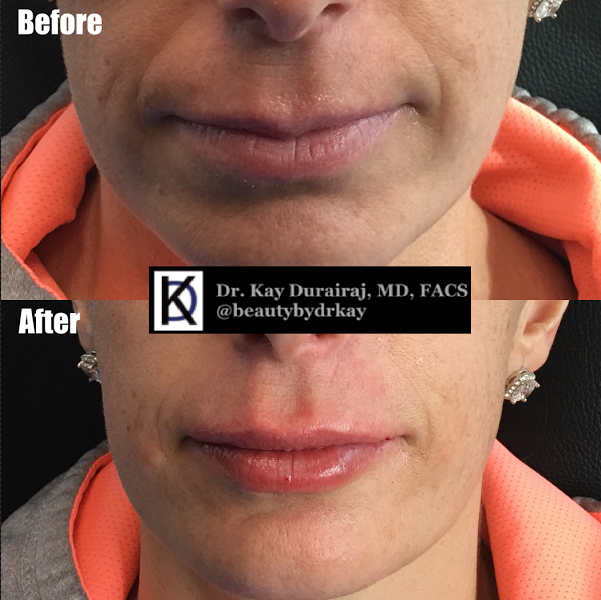 Female, Age 49 - Patient received 1 syringe of Juvederm Ultra Plus XC to give a more pronounced upper lip and to fill in lines on the bottom lip for a more glossy look.