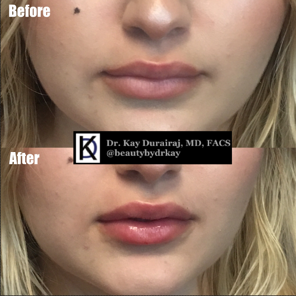 Female, Age 19 - Patient received 1 syringe of Restylane Lyft to increase the size of both upper and lower lips.
