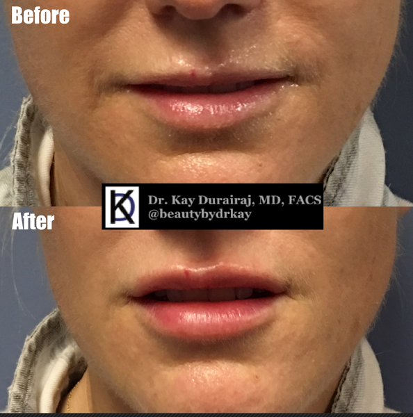Female, Age 34 - This patient received 1 syringe of Resylane Lyft to build a stronger upper lip and give a touch of filler in the bottom lip.