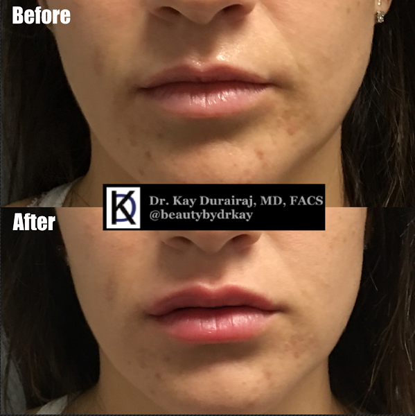 Female, Age 27 - This patient received 1 vial of Juvederm Ultra Plus XC to give the lips a soft, pillowy look.