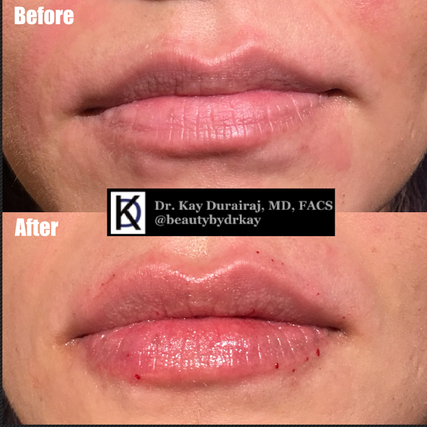 Female, Age 25 - This patient received 1 syringe of Juvederm Ultra Plus XC to give more volume to the lips and accentuate the upper lip.
