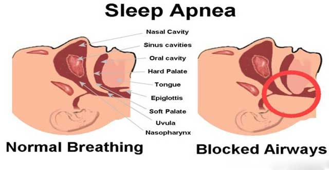 Home-Remedies-for-Sleep-Apnea-640x331.jpg