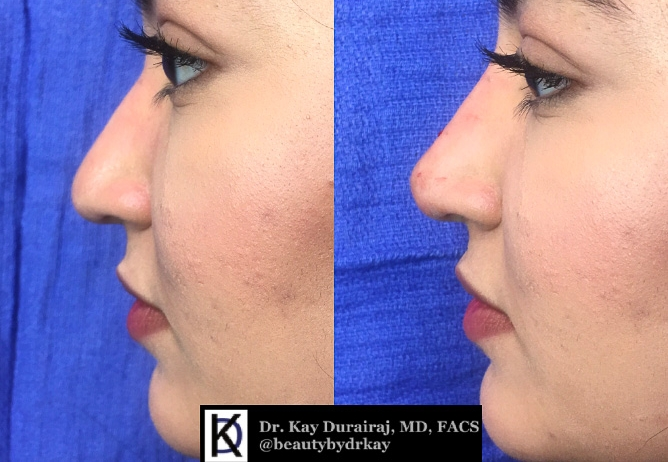 Female, Age 20  - This patient received 1 syringe of Restylane Lyft to lift the tip of the nose and elongate the slope.