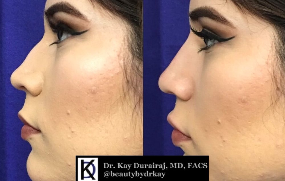 Female, Age 22 - This patient received 1 syringe of Restylane Lyft to straighten imperfections in the slope of the nose.