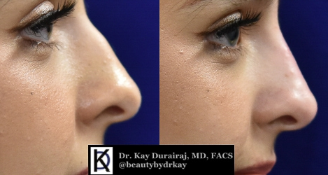 Female, Age 19 - This patient received 1 syringe of Restylane Lyft to smoothen out a dorsal hump.