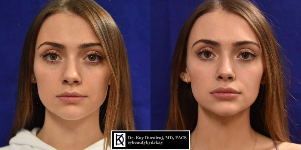 Female, Age 21 - This patient received 1 vial of Belotero Balance under the eyes to refresh, as well as 1 syringe of Juvederm Ultra Plus XC in the lips.