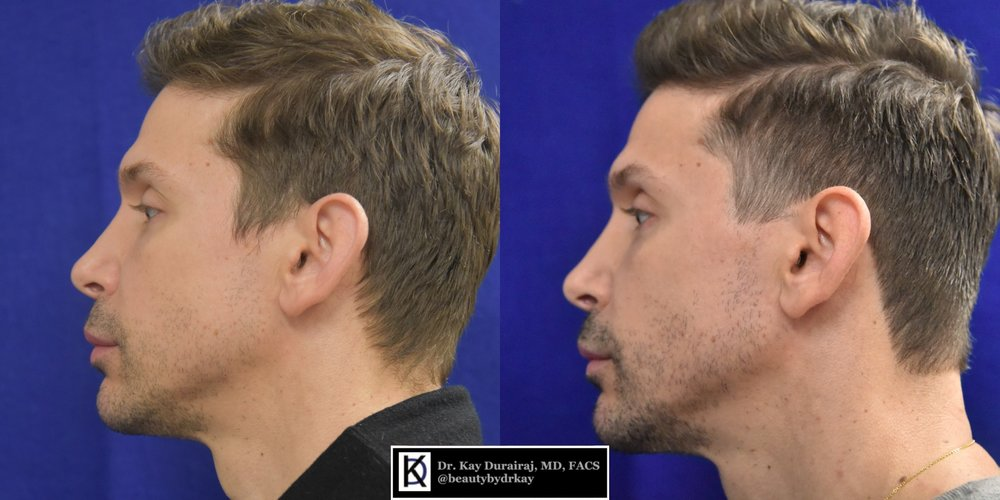 Male, Age 38 - Patient received 1 syringe of Radiesse in the jawline to create a sharper jaw and more contoured appearance.