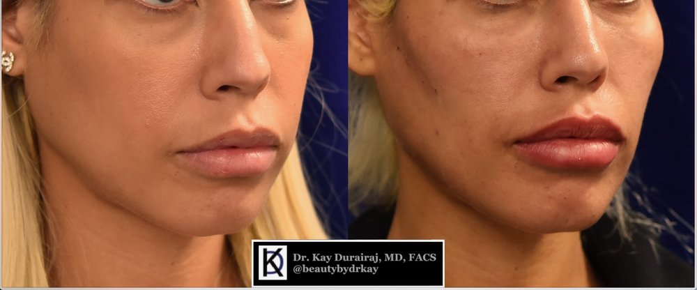 Female, Age 34 - Patient received 1 syringe of Radiesse in the jawline to sculpt and contour.