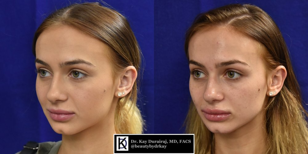 Female, Age 21 - Patient received 1 syringe of Radiesse in the cheeks and jawline for model-like angles.