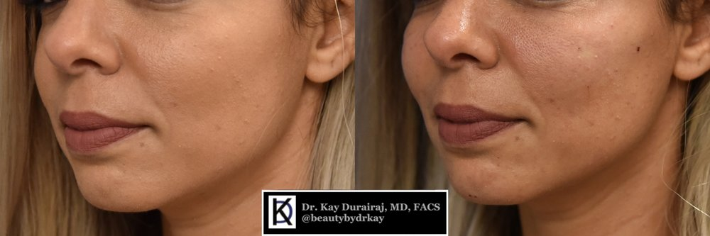 Female, Age 35 - Patient received 1 syringe of Radiesse in jawline to sculpt and define.