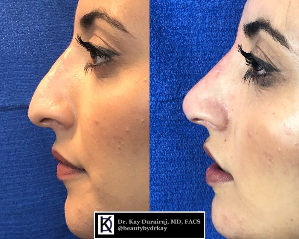 Female, Age 24 - This patient received 1 syringe of Restylane Lyft to lift the nasal tip and give a smooth appearance of the bridge.