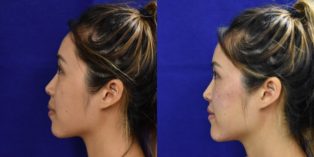 Female, Age 31 - Patient received 1 syringe of Restylane Lyft in the cheeks to highlight the cheekbones and give a sculpted appearance.