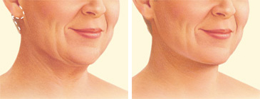 facelift-surgery-neck-lift-incision.jpg