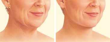 facelift-surgery-neck-lift-incision.jpg