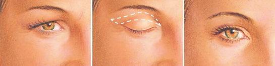 eyelid-surgery-upper-eyelid-incision.jpg