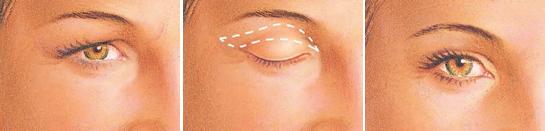 eyelid-surgery-upper-eyelid-incision.jpg