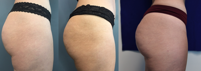 Call (626)316-7033 to schedule your Sculptra Butt  appointment today! -