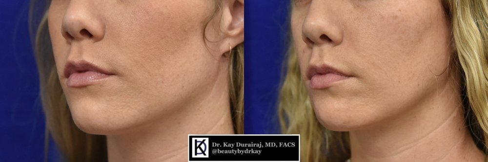 Female, Age 30 - This patient had 3 vials of Sculptra injected into her right jawline to restore her facial volume after she experienced facial atrophy on the right side of the face.