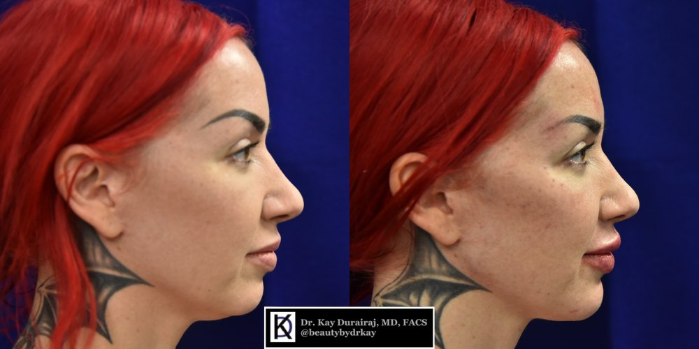 Female, Age 33 - This patient received 2 syringes of Radiesse in the cheeks to lift the cheekbones and reduce sagging in the nasolabial folds.