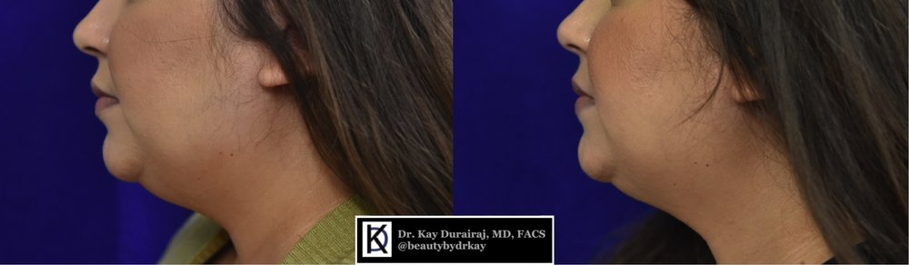 Female, Age 30 - This patient received 4 vials of Kybella to permanently melt fat and tighten the skin.