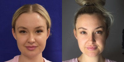 Female, Age 26 - This patient received 1 vial of Kybella in the jowls to melt fat and provide a slimmer, more angular face.